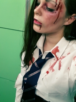 The side of my face. Blood everywhere