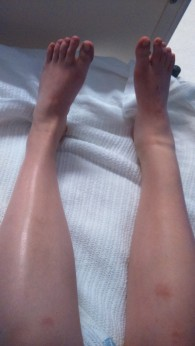 the ankle size difference